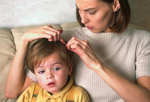 acabar-com-os-piolhos-tratamentos